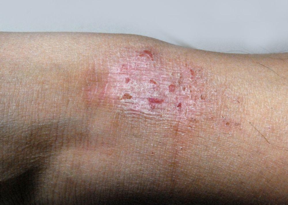 Manage Eczema